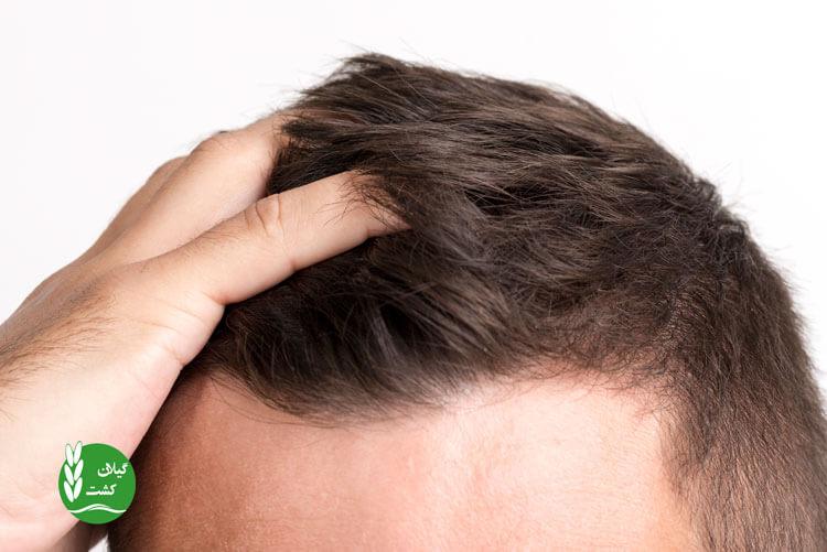 ده راه برای درمان ریزش مو